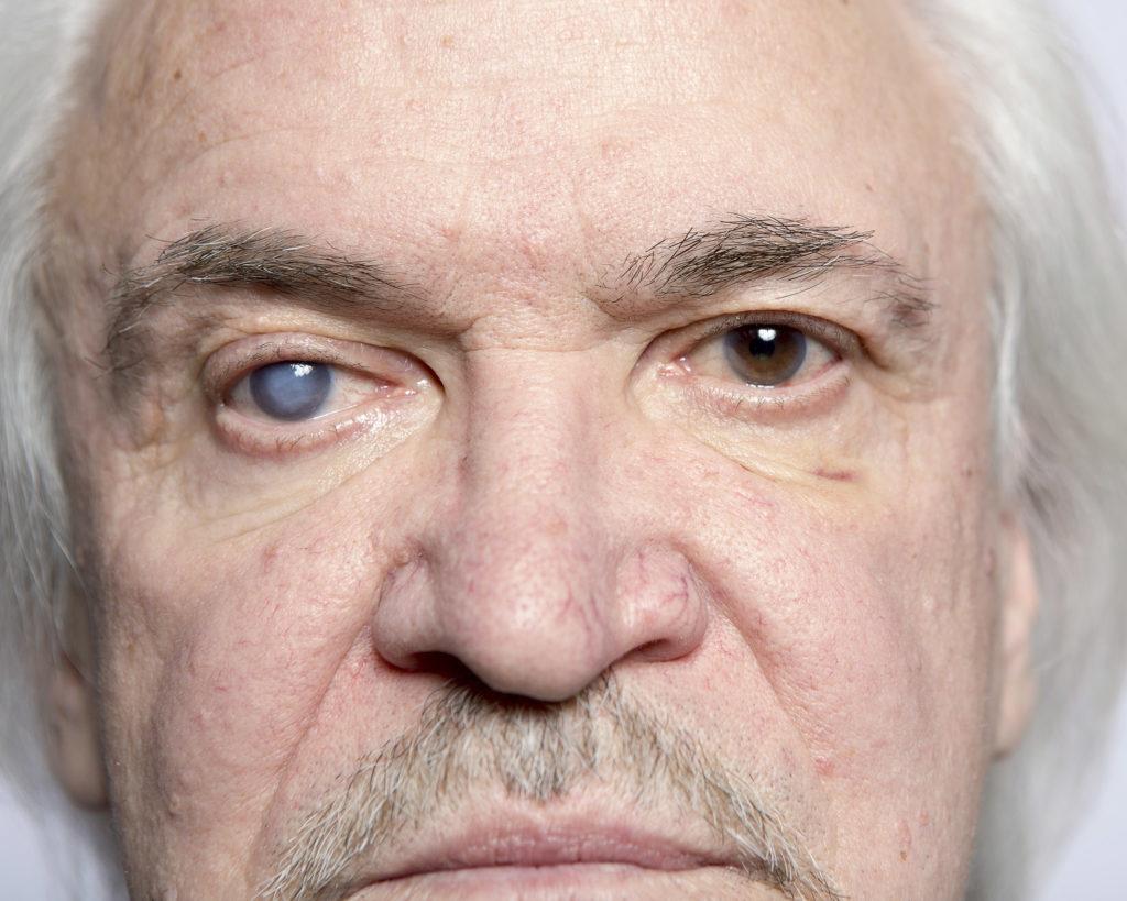 Un homme âgé avec un œil affecté par le glaucome