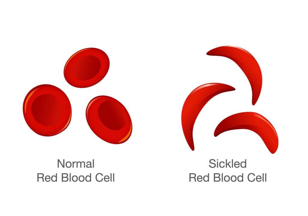 A normal red blood cell and a sickled red blood cell
