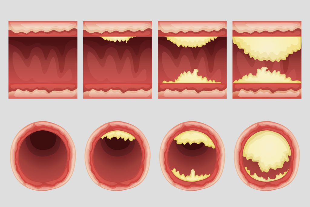 Four arterial walls with different levels of atherosclerosis