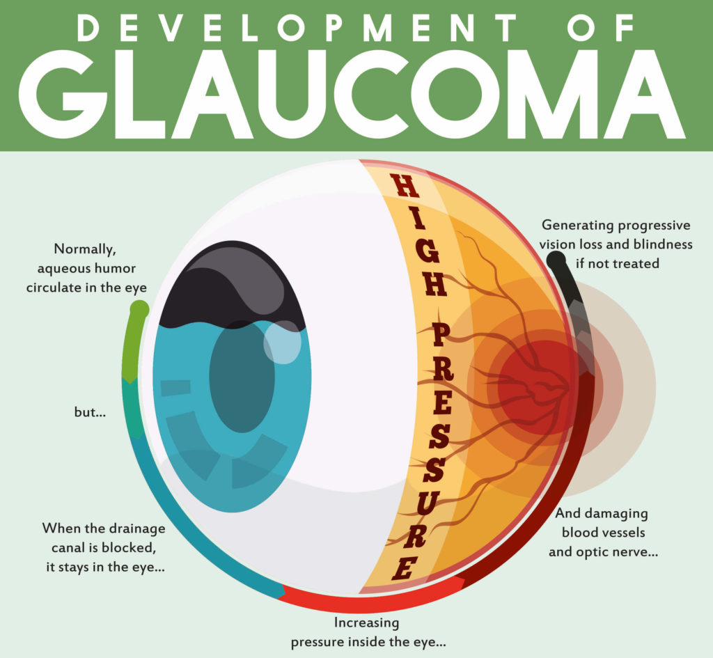 Un diagramme montrant le développement du glaucome