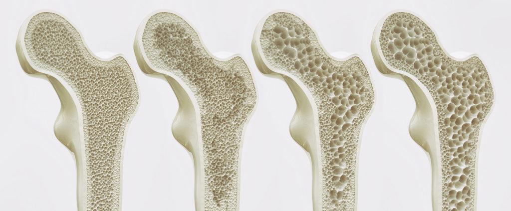Cuatro huesos diferentes que muestran los efectos dañinos de la osteoporosis.