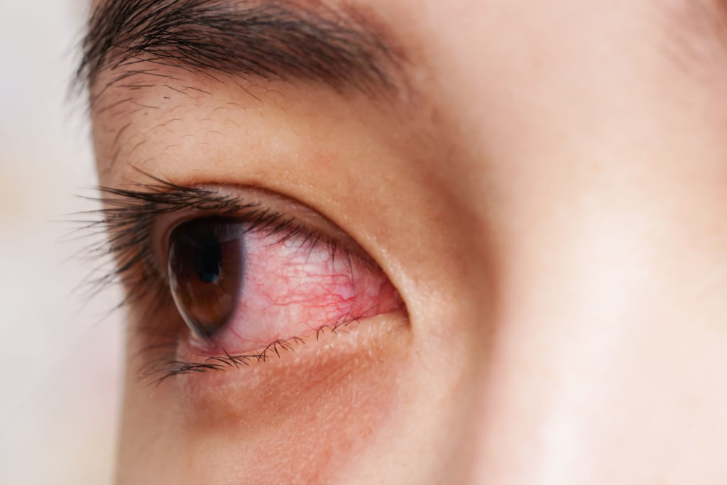 Ein blutiges Auge