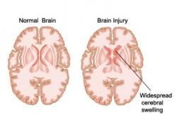 Brain damage following an acute event such as IS or TBI occurs in part due to inflammation (Mahesh Kumar)