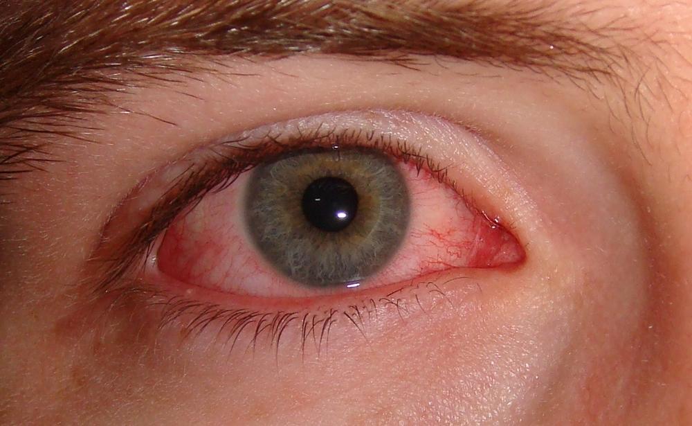 Die Wassergeschwulst unter dem Auge badjaga abzunehmen