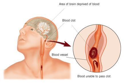 Cerebrovascular Accident | CVA Treatment | Stroke Rehabilitation