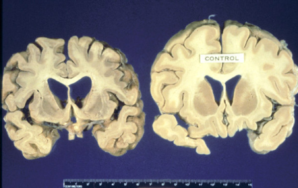 The brain of an individual who died of TSE compared to a normal brain (© duke.edu)
