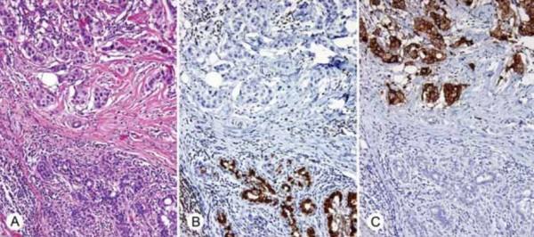 Progresión desde un tejido mamario sano a uno canceroso, © Libertas Academia