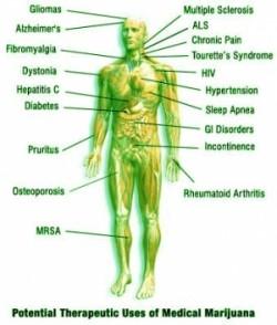 Usos terapeuticos marihuana