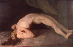 Cuadro de Sir Charles Bell, 1809, en el que se representa la frecuente espalda arqueada de los enfermos de tétanos (Wikimedia Commons)