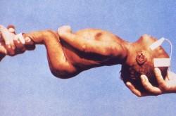 Un niño que sufre de tétanos neonatal muestra la espalda arqueada y los espasmos en las manos característicos (Wikimedia Commons)