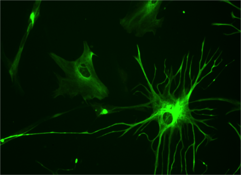 Un astrocito en el cerebro humano