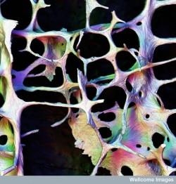 En la osteoporosis, la hiperactividad de los receptores CB en los osteoclastos produce una reabsorción ósea excesiva (© Wellcome Images)