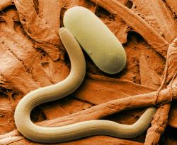El nematodo del quiste de soja, otro gusano con el que acaba el cannabis (© Wikimedia Commons)