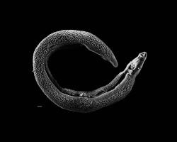 El trematodo Schistosoma, responsable de la esquistosomiasis o bilharzia (© (© Wikimedia Commons)