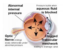Un diagramma che mostra la progressione del glaucoma