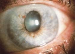 Un tipico caso di glaucoma acuto, che mostra vasodilatazione dei capillari ed un bulbo occulare di forma irregolare